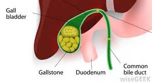gall bladder and upper back pain picture 6