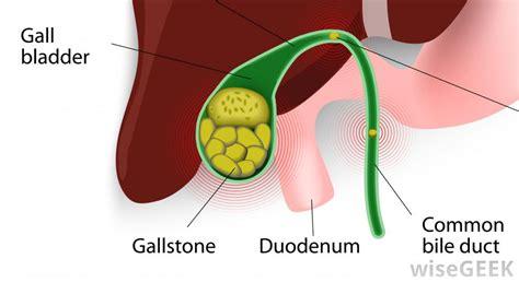 help bile bladder picture 3