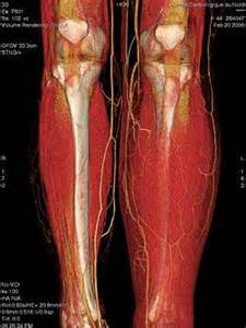 muscle disease picture 6