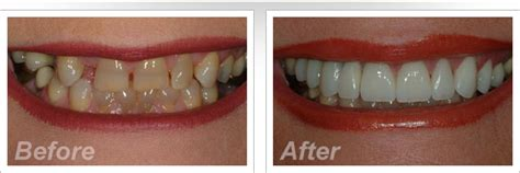 childrens teeth discoloration and veneers picture 13