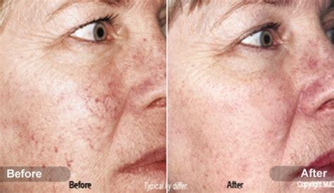 az vein skin rejuvenation picture 21