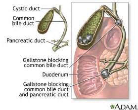 diseases of the gall bladder and bile ducts picture 7
