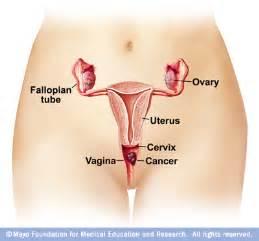 Prolaps tube picture 1