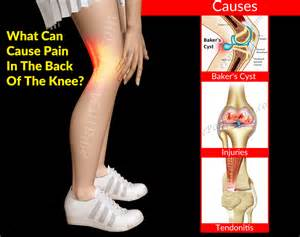 pain behind knee picture 2