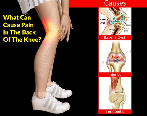 what causes pain in knees picture 3