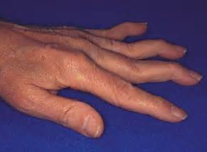 causes of joint effusions picture 14