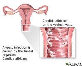 do most girls have a mini yeast infection picture 1