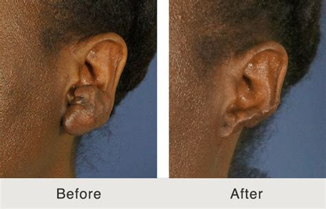 fix skin keloid removal review picture 9