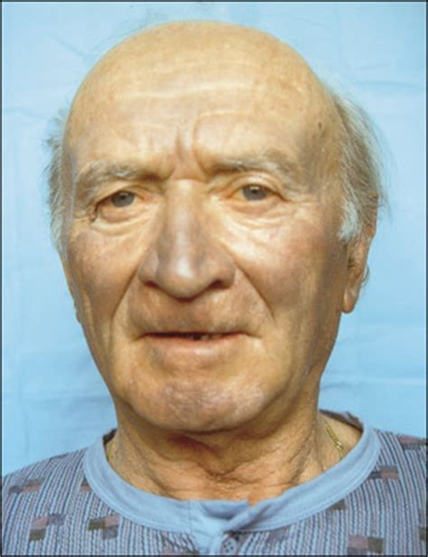 abnormal pigmentation of the skin gray or bronze picture 3