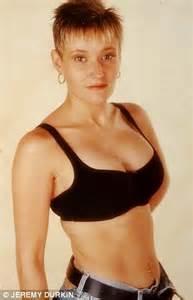 breast augmentation in tb area picture 13