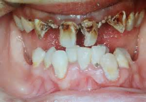 effects of marijuana on teeth picture 1