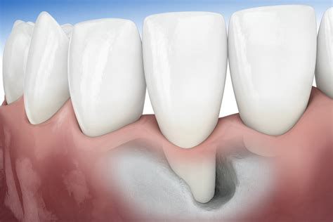 coffee and tooth bone loss picture 9