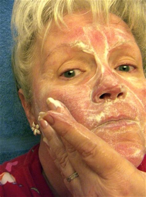 flaky skin and rosacea picture 7