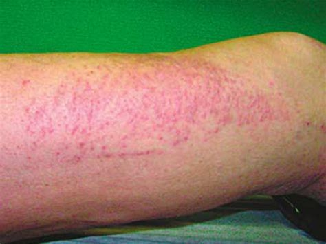 abnormal red blotches on skin picture 7