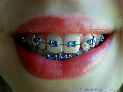 colored braces teeth picture 15