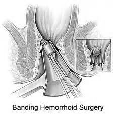 complications of sclerotherapy for hemorrhoids picture 2
