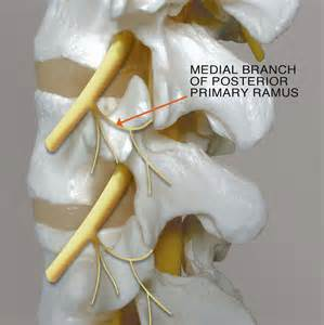 cervical facet joint procedure picture 6