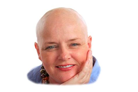 chemotherapy hair loss picture 10