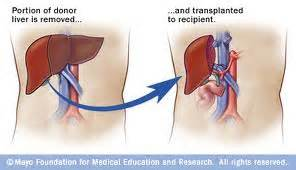 where is the most liver transplants done picture 11