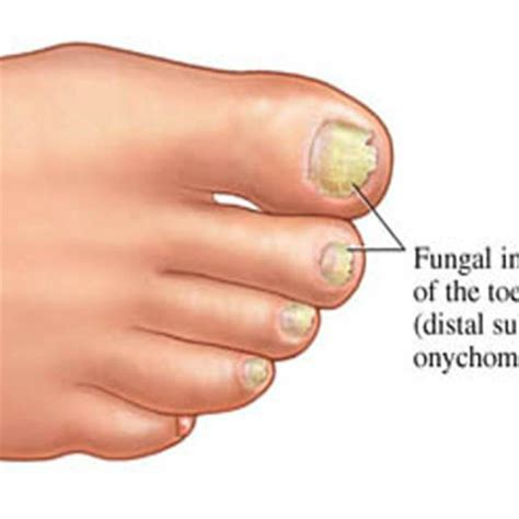 pinpoint laser for toe nail fungus in los angeles picture 4