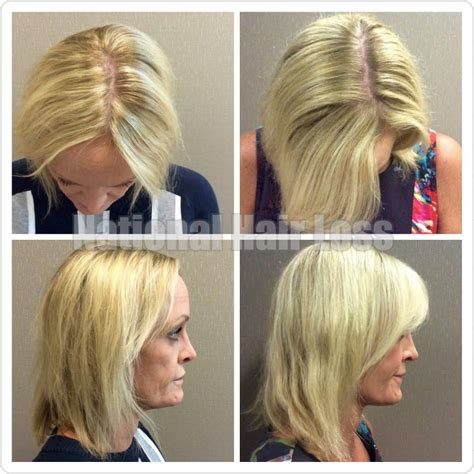 alapica female hair loss picture 3