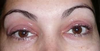 allergy in skin around eyes picture 17
