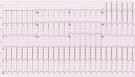 herbal cures for tachycardia picture 10