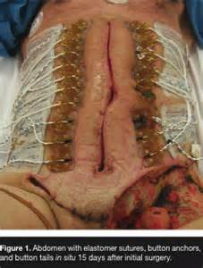 abscess on colon picture 7