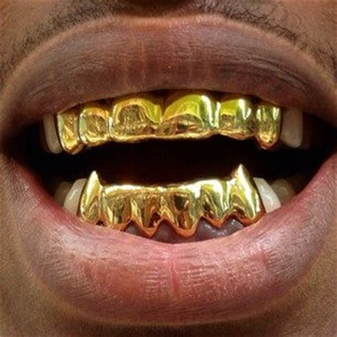 find people that does gold teeth in houston picture 4