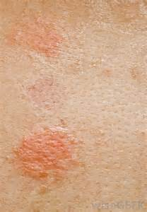 red small circle skin rash picture 13