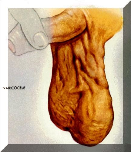 what can cause blood flow problems to penis picture 5