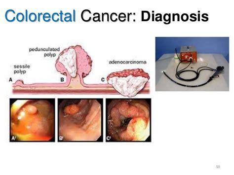 colon cancer prognosis picture 9