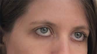 calcium deposits on skin picture 11