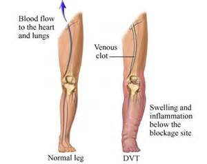 can pressure on nerves to legs cause blood clots picture 9