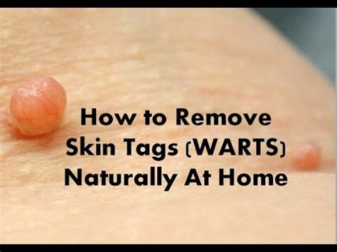 how to remove warts picture 1