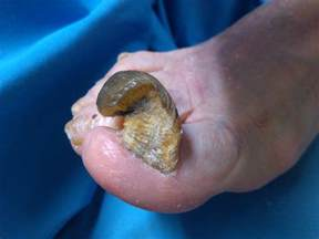 wart on the toe picture 10