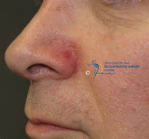 treatment for nose skin ling picture 6