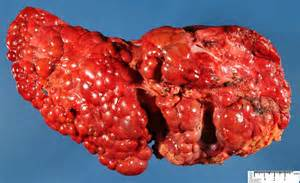 chronic liver disease skin name picture 3