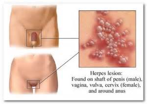how do herpes burn fat picture 3