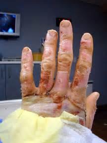 acid skin burn picture 17