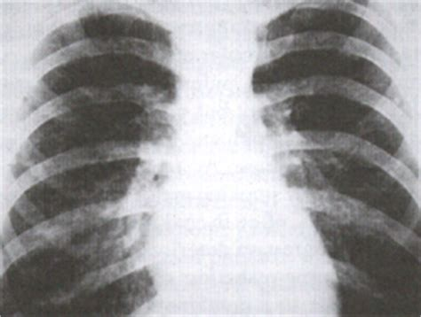 yeast infection lung picture 5