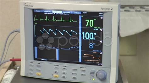 Blood pressure rate picture 3