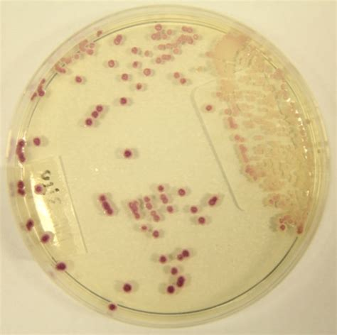 systemic candida oxyflush reviews picture 21