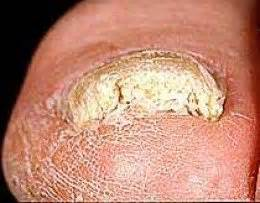 yellow thick toenail picture 3