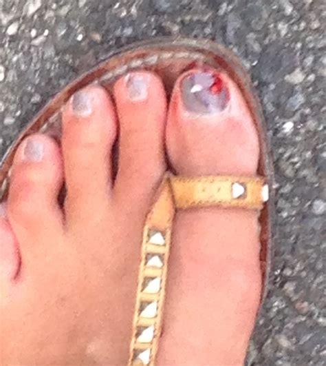 split skin on big toe picture 3