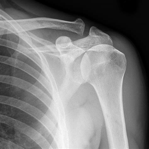 ac joint arthritis picture 11