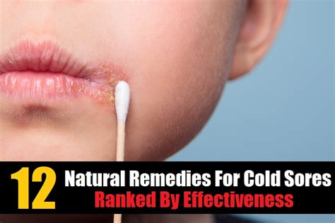 doctor natural herpes remedy picture 7