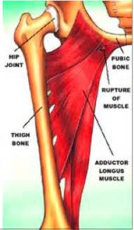 groin muscle pain picture 10