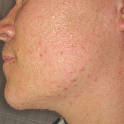 acne herbal treatment picture 1