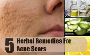 scars herbal healing picture 3